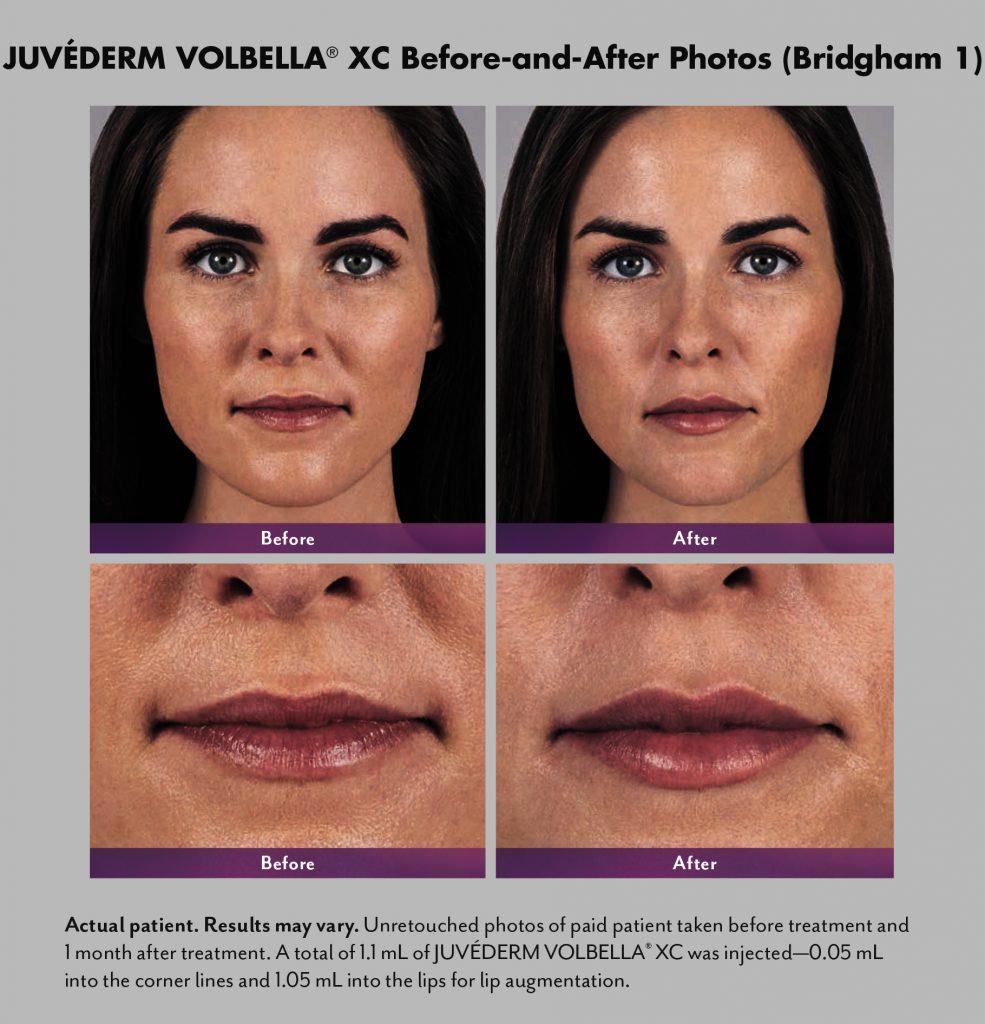 Juvederm Volbella Deerfield Dermatology