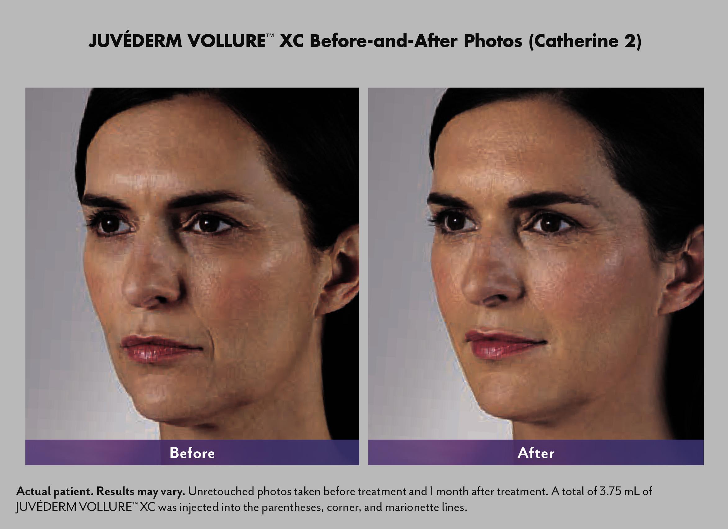 Juvederm Vollure XC - Deerfield Dermatology